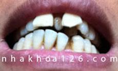 http://nhakhoa126.com/hinhanh/Benh-ly/IMG_1007.jpg