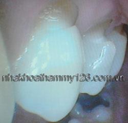 http://nhakhoa126.com/hinhanh/Benh-ly/nha-khoa-126-mon-co-chan-rang08.jpg