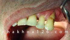 http://nhakhoa126.com/hinhanh/Benh-ly/nha-khoa-126-nha-chu-do-voi-rang-01.jpg