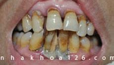 http://nhakhoa126.com/hinhanh/Benh-ly/nha-khoa-126-nha-chu-do-voi-rang.jpg