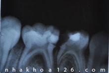 http://nhakhoa126.com/hinhanh/Benh-ly/nha-khoa-126-phim-x-quang-rang-tre-em.jpg
