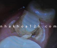 http://nhakhoa126.com/hinhanh/Benh-ly/nha-khoa-126-rang-chua-tuy-bi-be.jpg