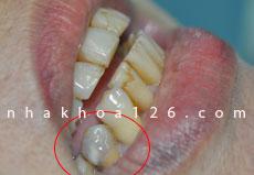 http://nhakhoa126.com/hinhanh/Benh-ly/nha-khoa-126-rang-chua-tuy-bi-den-01.jpg