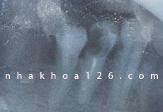 http://nhakhoa126.com/hinhanh/Benh-ly/nha-khoa-126-rang-chua-tuy-bi-den-02.jpg