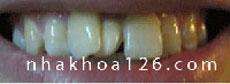 http://nhakhoa126.com/hinhanh/Benh-ly/nha-khoa-126-rang-du-01-minhvuong.jpg