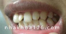 http://nhakhoa126.com/hinhanh/Benh-ly/nha-khoa-126-rang-du-02.jpg