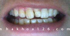 http://nhakhoa126.com/hinhanh/Benh-ly/nha-khoa-126-rang-du-hannoi.jpg