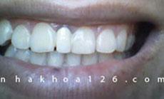 http://nhakhoa126.com/hinhanh/Benh-ly/nha-khoa-126-rang-du-hoangphu.jpg