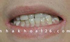 http://nhakhoa126.com/hinhanh/Benh-ly/nha-khoa-126-rang-du-o-giua-hai-rang-cua-aumyvan01.jpg