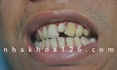 http://nhakhoa126.com/hinhanh/Benh-ly/nha-khoa-126-rang-du-o-giua-hai-rang-cua01.jpg