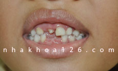 http://nhakhoa126.com/hinhanh/Benh-ly/nha-khoa-126-rang-du-o-giua-hai-rang-cua02.jpg
