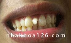 http://nhakhoa126.com/hinhanh/Benh-ly/nha-khoa-126-rang-du.jpg