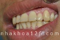 http://nhakhoa126.com/hinhanh/Benh-ly/nha-khoa-126-rang-nanh-nhon-02.jpg
