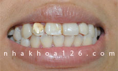 http://nhakhoa126.com/hinhanh/Benh-ly/nha-khoa-126-rang-nhiem-flour.jpg