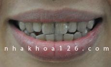 http://nhakhoa126.com/hinhanh/Benh-ly/nha-khoa-126-rang-nhiem-khang-sinh.jpg