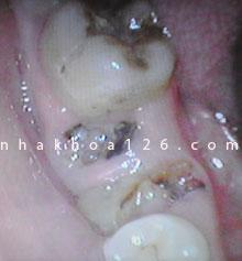 http://nhakhoa126.com/hinhanh/Benh-ly/nha-khoa-126-rang-sau-can-duoc-nho-bo-01.jpg