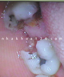 http://nhakhoa126.com/hinhanh/Benh-ly/nha-khoa-126-rang-sau-can-duoc-nho-bo-04.jpg