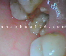 http://nhakhoa126.com/hinhanh/Benh-ly/nha-khoa-126-rang-sau-can-duoc-nho-bo-06.jpg