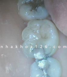 http://nhakhoa126.com/hinhanh/Benh-ly/nha-khoa-126-tram-ke-rang-sau-thuong-gay-nhet-do-an.jpg