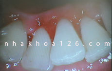 http://nhakhoa126.com/hinhanh/Benh-ly/nha-khoa-126-voi-rang-02.jpg