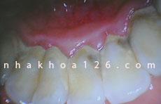 http://nhakhoa126.com/hinhanh/Benh-ly/nha-khoa-126-voi-rang-03.jpg