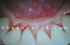 http://nhakhoa126.com/hinhanh/Benh-ly/nha-khoa-126-voi-rang-04.jpg