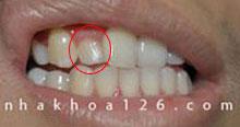 http://nhakhoa126.com/hinhanh/Benh-ly/nha-khoa-khong-co-mam-rang-vinh-vien.jpg