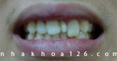 http://nhakhoa126.com/hinhanh/Benh-ly/nha-khoa-rang-du-vuducquan.jpg