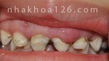 http://nhakhoa126.com/hinhanh/Benh-ly/nha-khoa-rang-tre-em-bi-ap-xe.jpg