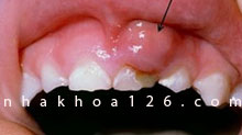 http://nhakhoa126.com/hinhanh/Benh-ly/nha-khoa-rang-tre-em-bi-apxe.jpg