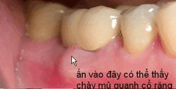 http://nhakhoa126.com/hinhanh/Benh-ly/nha-khoa126-tui-nha-chu.jpg
