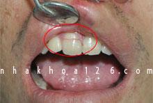 http://nhakhoa126.com/hinhanh/Benh-ly/nhakhoa126-rang-bi-gay-do-tai-nan.jpg