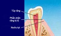 http://nhakhoa126.com/hinhanh/Benh-ly/nhakhoa126-rang-nhay-cam.jpg