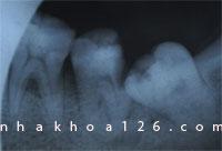 http://nhakhoa126.com/hinhanh/Benh-ly/nhakhoa126-rang-s0-7-bi-vo-do-rang-khon.jpg