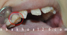 http://nhakhoa126.com/hinhanh/Benh-ly/nhakhoa126-rang-sua-con-lai-tren-cung-ham-huong02.jpg