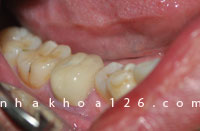 http://nhakhoa126.com/hinhanh/Benh-ly/nhakhoa126-sau-rang-mat-ben-gay-bat-loi-cho-viec-tram-rang02.jpg