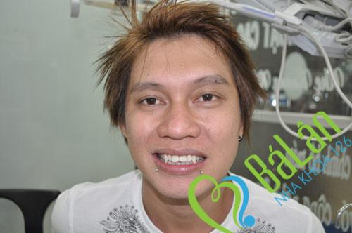 http://nhakhoa126.com/hinhanh/Chuongtrinh/nha-khoa-ba-lan-rang-ma-ca-rong.jpg