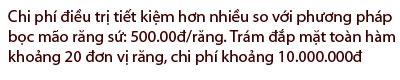 http://nhakhoa126.com/hinhanh/Gioi-thieu/nhakhoa126-chi-phi-tram-dap-mat.jpg