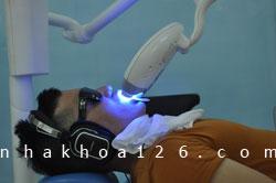 http://nhakhoa126.com/hinhanh/Gioi-thieu/nhakhoa126-tay-trang-01.jpg