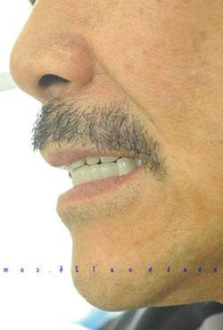 http://nhakhoa126.com/hinhanh/benh-nhan-da-dieu-tri/nha-khoa-chu-tung02.jpg