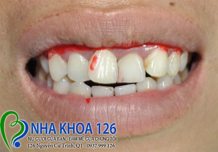 http://nhakhoa126.com/hinhanh/rang-su/nha-khoa-126-boc-mao-rang-su-cho-4-rang-cua-lech-bnnhung01.jpg