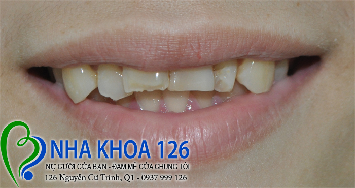 http://nhakhoa126.com/hinhanh/rang-su/nha-khoa-ba-lan-dieu-tri-cho-rang-xo-lech-bsnhidong03.jpg