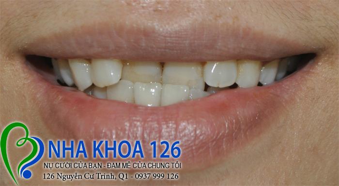 http://nhakhoa126.com/hinhanh/rang-su/nha-khoa-ba-lan-dieu-tri-khop-can-nguoc-quyen-01.jpg