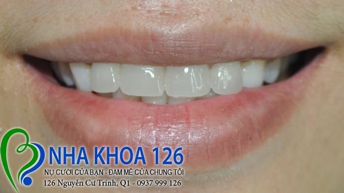 http://nhakhoa126.com/hinhanh/rang-su/nha-khoa-ba-lan-dieu-tri-khop-can-nguoc-quyen-02.jpg