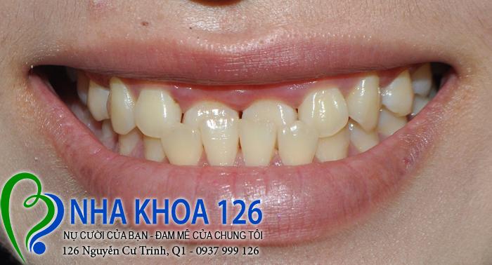 http://nhakhoa126.com/hinhanh/rang-su/nha-khoa-ba-lan-dieu-tri-khop-can-nguoc-thu-trang-01.jpg