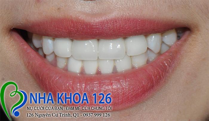 http://nhakhoa126.com/hinhanh/rang-su/nha-khoa-ba-lan-dieu-tri-khop-can-nguoc-thu-trang-02.jpg
