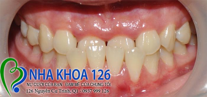 http://nhakhoa126.com/hinhanh/rang-su/nha-khoa-ba-lan-dieu-tri-khop-can-nguoc-thu-trang-03.jpg