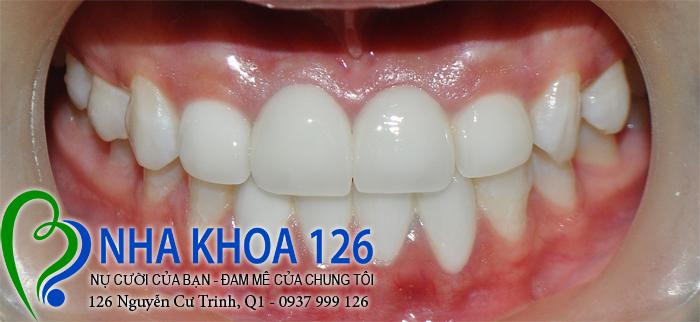 http://nhakhoa126.com/hinhanh/rang-su/nha-khoa-ba-lan-dieu-tri-khop-can-nguoc-thu-trang-04.jpg