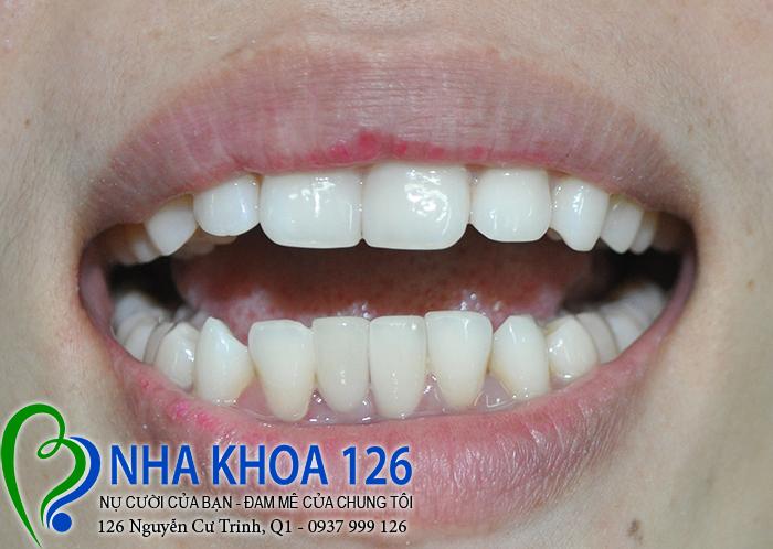 http://nhakhoa126.com/hinhanh/rang-su/nha-khoa-ba-lan-dieu-tri-rang-cua-duoi-lech-thanh02.jpg