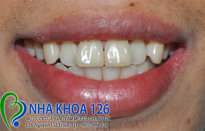 http://nhakhoa126.com/hinhanh/rang-su/nha-khoa-ba-lan-dieu-tri-rang-cua-ho-linhcamau01.jpg